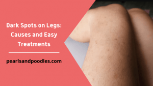 Dark Spots on Legs Causes and Easy Treatments