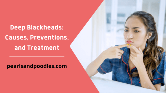 Deep Blackheads Causes, Preventions, and Treatment
