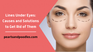 Lines Under Eyes Causes and Solutions to Get Rid of Them