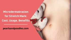 Microdermabrasion for Stretch Mark Cost, Usage, Benefits